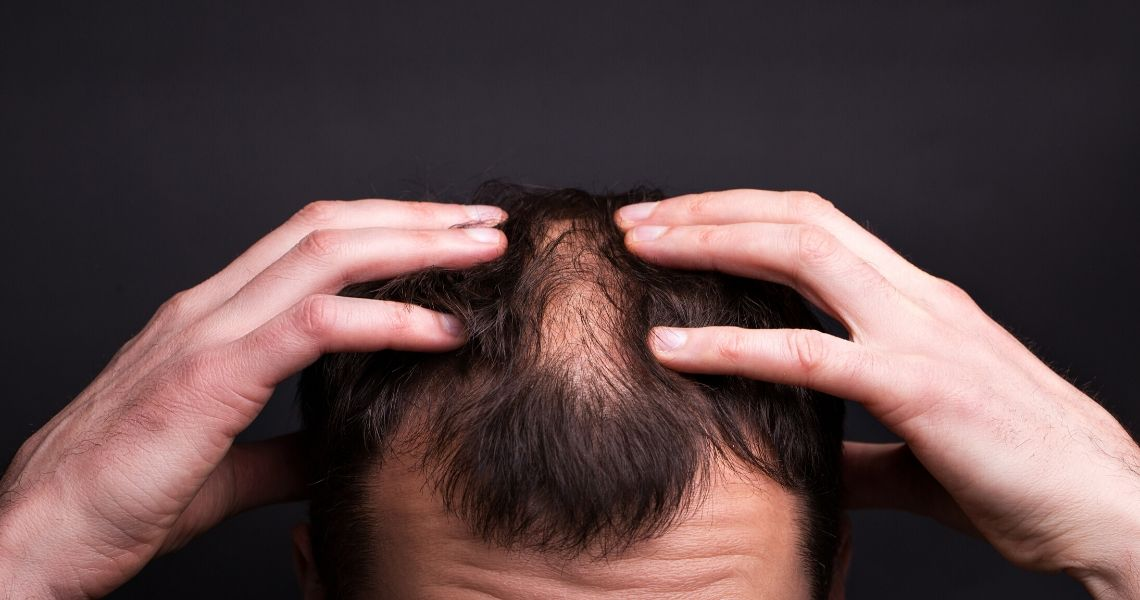 Are these Foods included in your Hair Loss Diet?