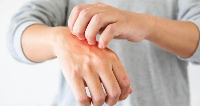 Natural Home Remedies to cure Eczema